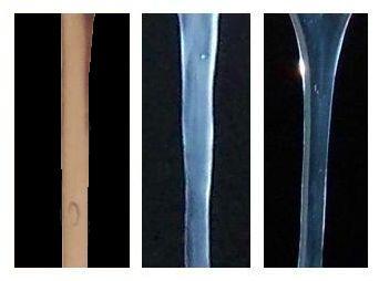 Moco cervical abundante y transparente