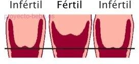 Tener el cuello del utero bajo en el embarazo