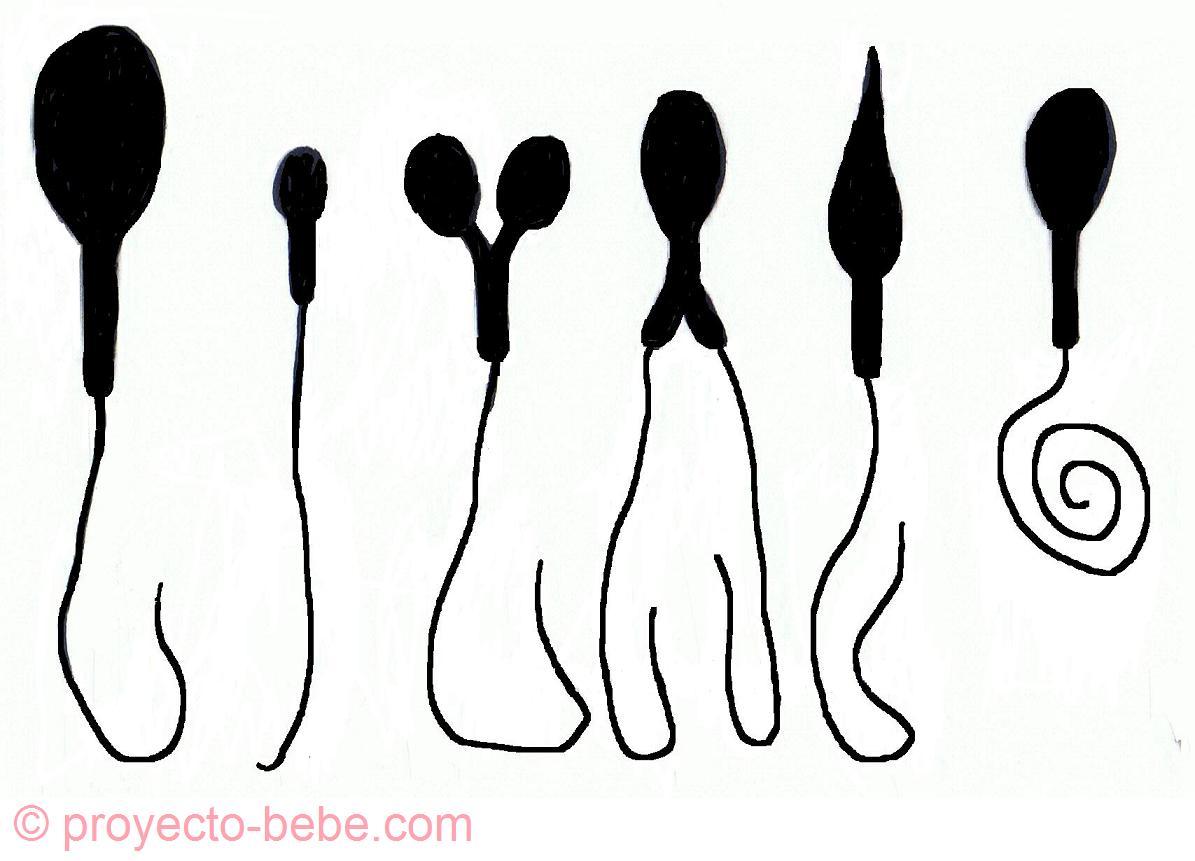 Cuente vitamina baja de esperma